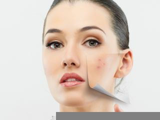 home_remedies_to_fight_skin_pigmentation1_320x240